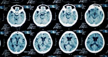 Cancer scanner 'could help early diagnoses' of dementia