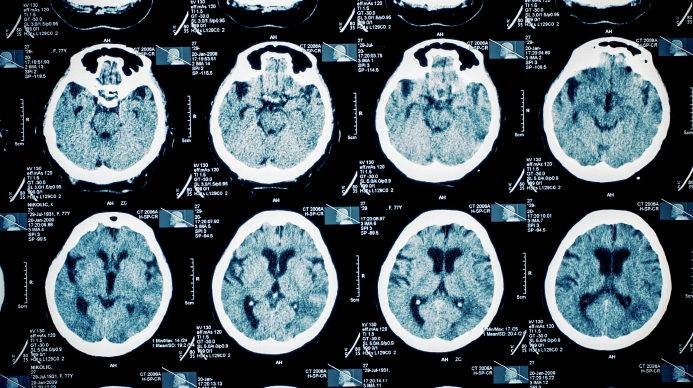 Parkinson's tremors could be effectively treated with soundwaves